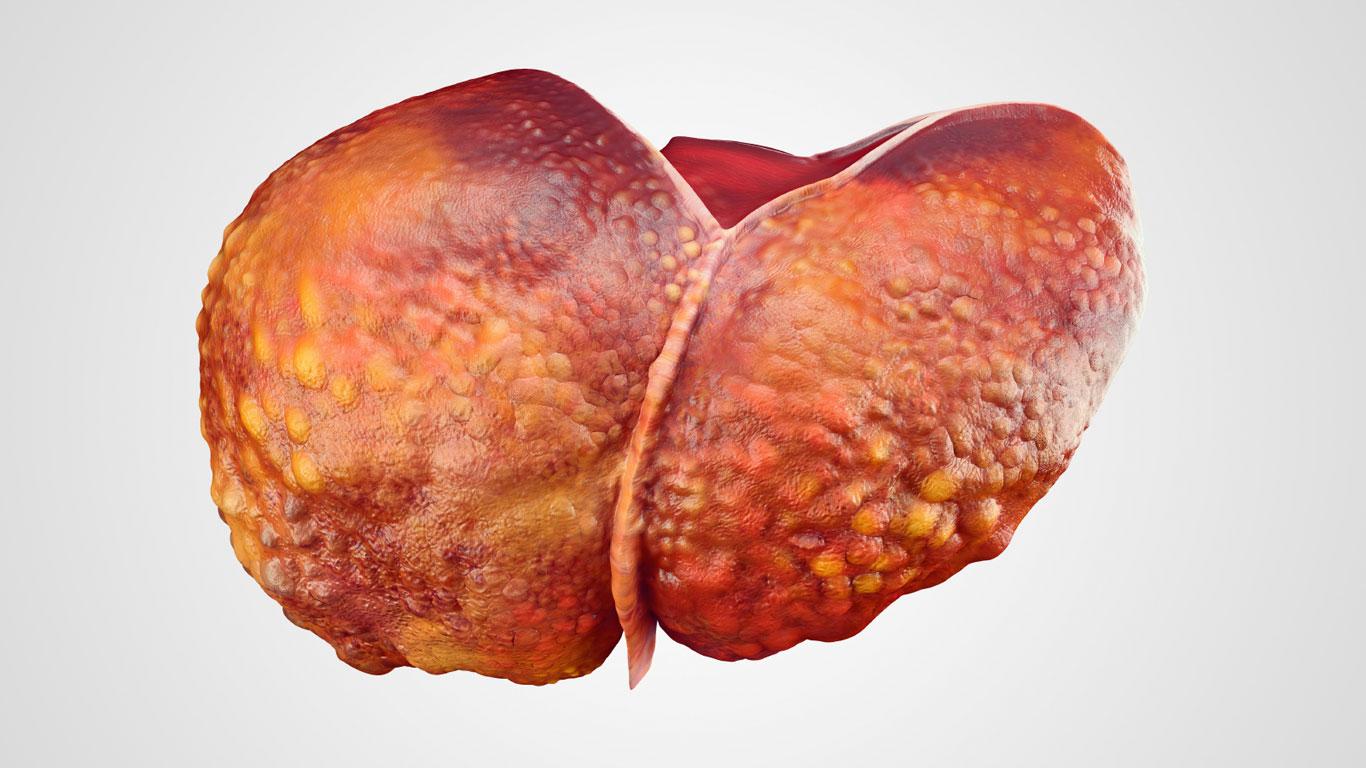 Welche Folgen kann eine Hepatitis-Erkrankung haben?