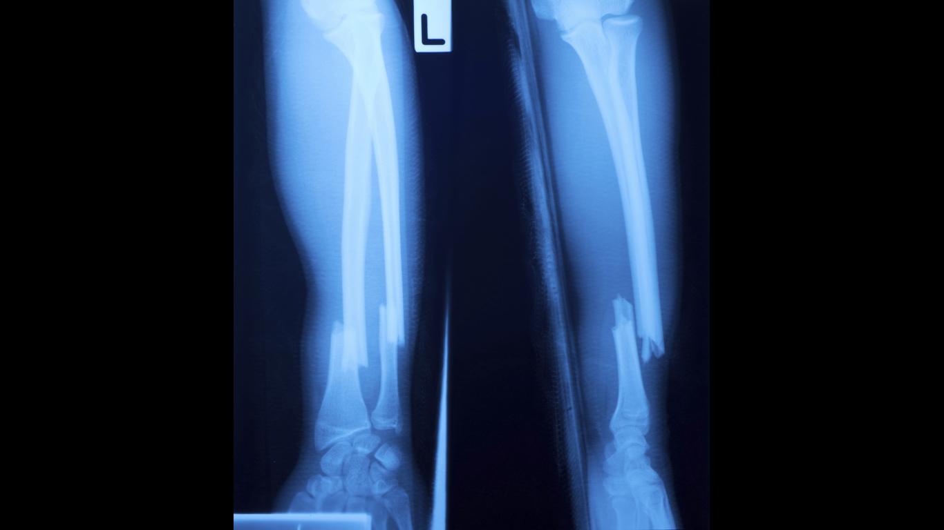 Wie heilt ein Knochenbruch am schnellsten?