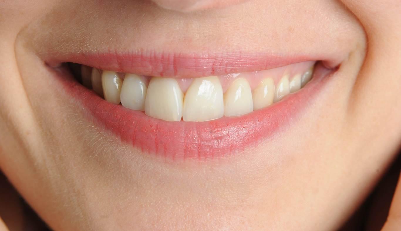 19. Der Arzt sagt: Bleaching schadet den Zähnen überhaupt nicht