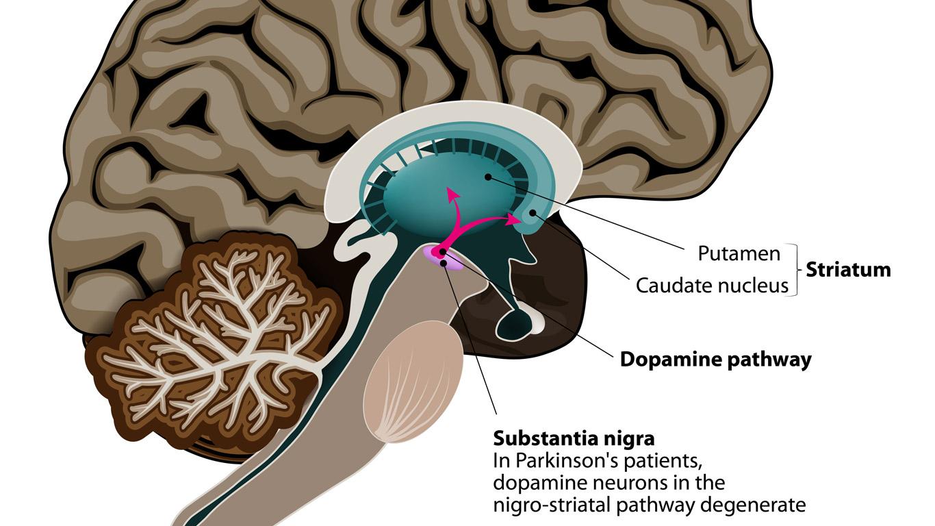 Was verursacht Parkinson?
