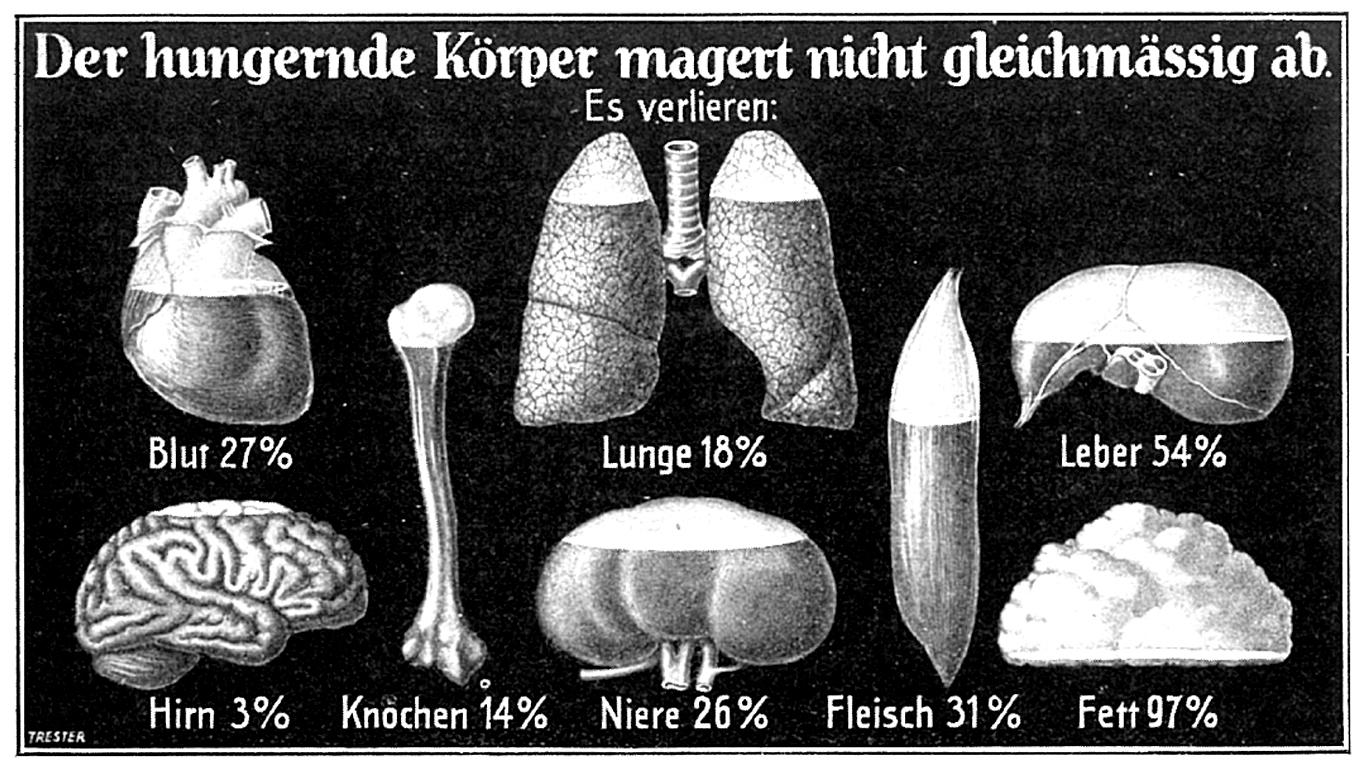 Wo nimmt der Körper ab? (1926)
