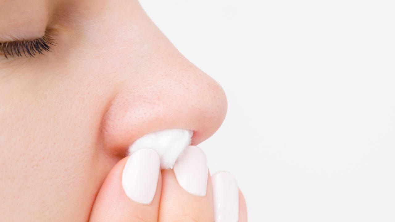 #19 Bei starkem Nasenbluten ist es ratsam, die blutenden Nasenlöcher mit einem weichen Stopfen zu verschließen