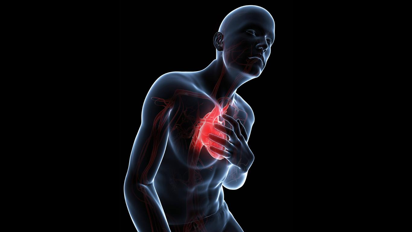 Herzkrämpfe – Schmerzstufe 9: