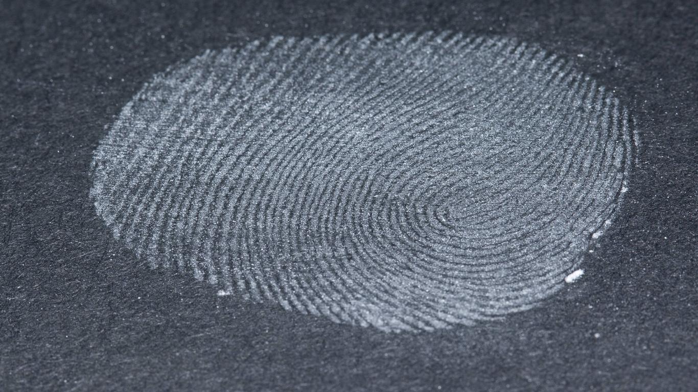 Gibt es Menschen ohne Fingerabdruck?