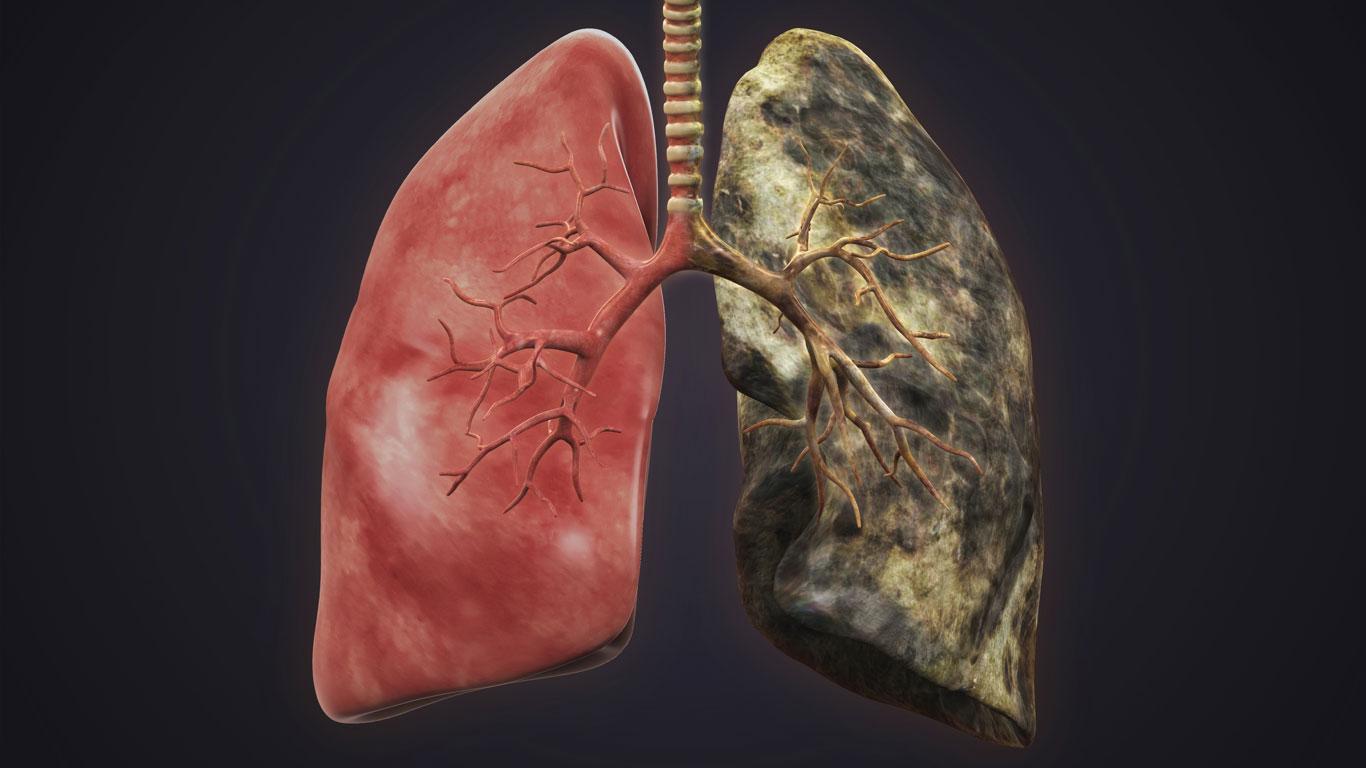 Rauchen fördert die Entstehung von Lungenkrebs