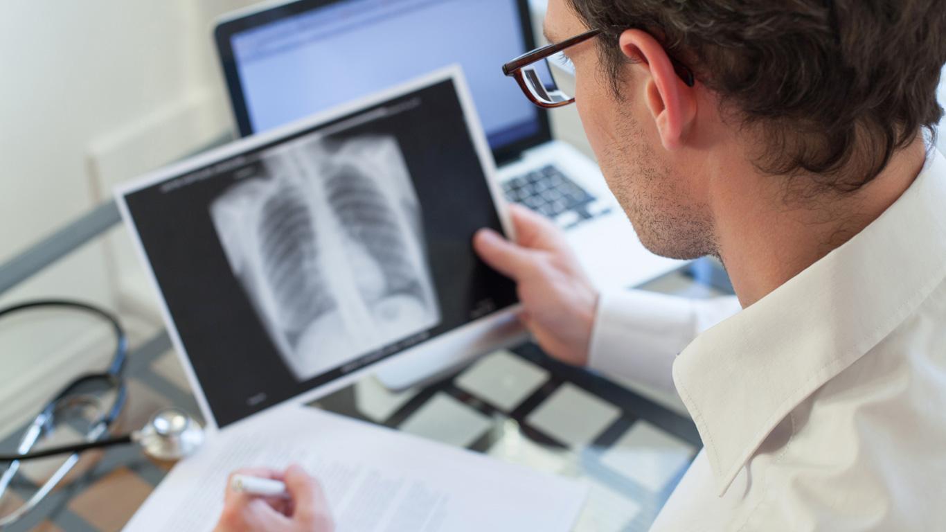 Tuberkulose: Nicht kleinzukriegen
