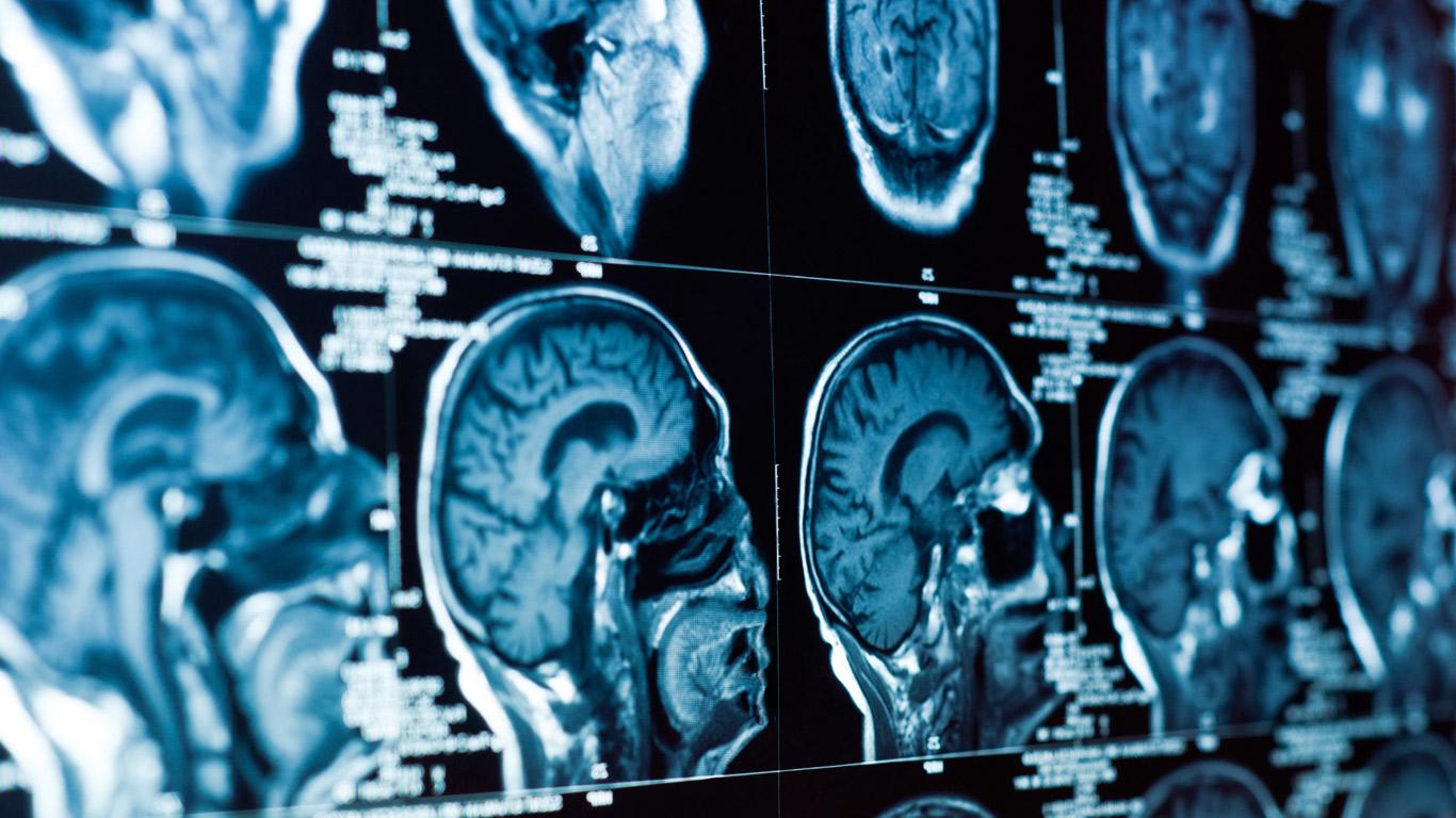 Ein lebenseinschränkendes Nervenleiden